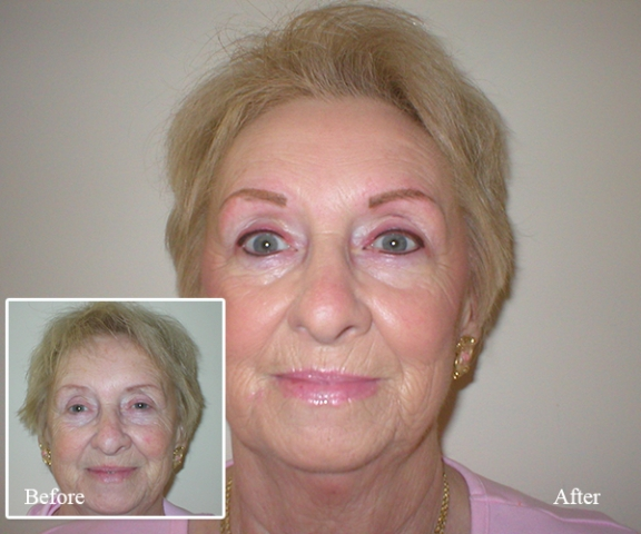 Permanent Makeup in Brevard County FL - Facial Spa and Clinic