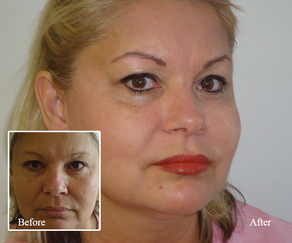 Permanent Eyeliner in Melbourne FL - Facial Spa and Clinic
