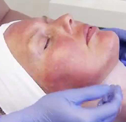 microneedling at facial spa and clinic, rockledge fl