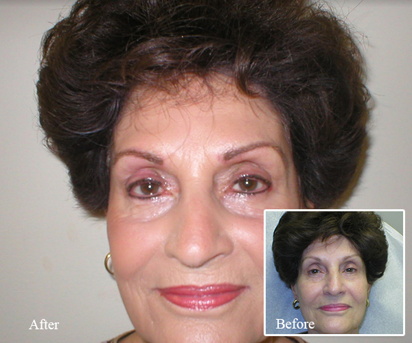 Permanent Makeup in Rockledge FL - Facial Spa and Clinic