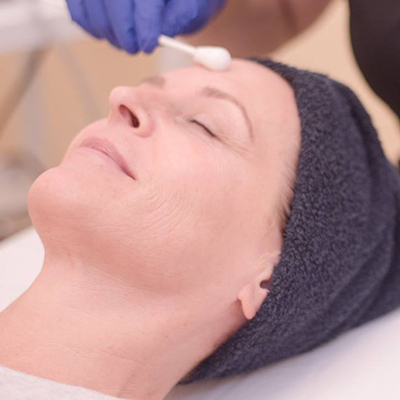 Facials and Peels - Rockledge FL